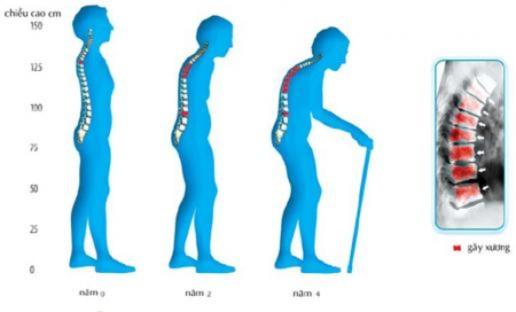 Giải pháp mới trong phòng ngừa và điều trị bệnh loãng xương