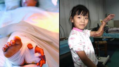 Bé gái được phẫu thuật tách tay ra khỏi chân