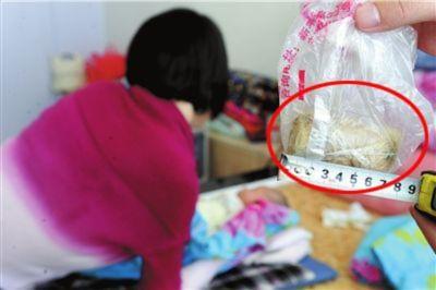 Bỏ quên túi gạc dài 6 cm trong tử cung