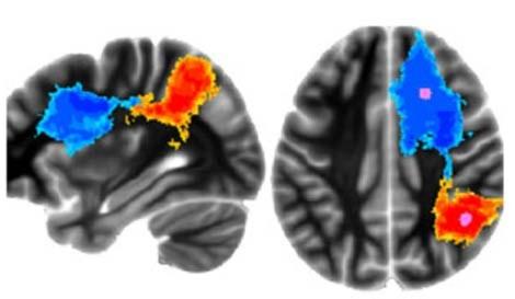Phi công chiến đấu có bộ não khác người thường?