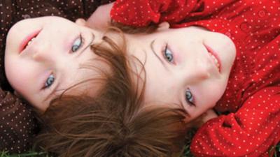 Không có nhiều cặp sinh đôi dính đầu có thể sống sót. Ảnh: Gizmodo.