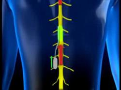 Thiết bị siêu nhỏ kiểm soát cơn đau