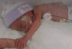 Em bé kỳ diệu ở Ấn Độ nặng 495g khi sinh