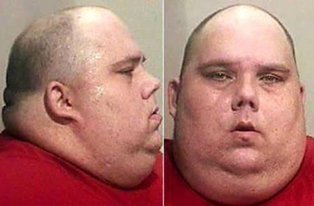 10 kỷ lục về thừa cân, béo phì, Phi thường - kỳ quặc, beo phi, can nang, trong luong, ky luc the gioi