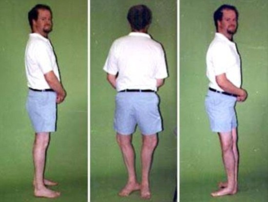 Người đàn ông có thể xoay ngược chân và đầu