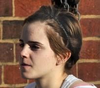 """Emma Watson bất ngờ """"lộ"""" da mặt sần sùi"""