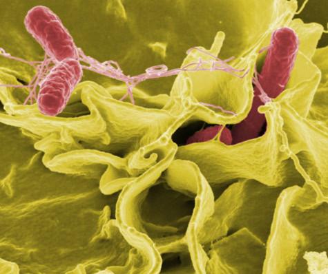 Vi khuẩn có khả năng diệt ung thư