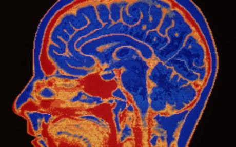 10 điều kinh ngạc về não người
