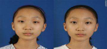 Các thiếu nữ châu Á và nỗi ám ảnh giống Tây
