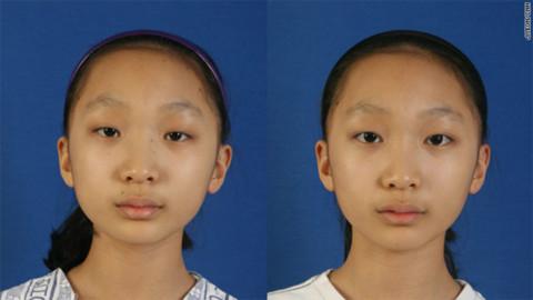 Lee Min-kyong trước và sau khi phẫu thuật cắt mí mắt. Ảnh: CNN.