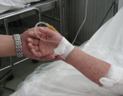 Bàn tay nổi nhiều nốt đỏ của một bệnh nhi tay chân miệng bị biến chứng. Ảnh: Cao Lâm.