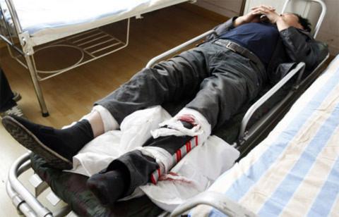 Một tài xế bị thương được đưa vào bệnh viện cấp cứu.