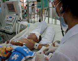 Bệnh nhi tay chân miệng bị biến chứng thần kinh điều trị tại BV NHi Đồng 2. Ảnh: Cao Lâm.