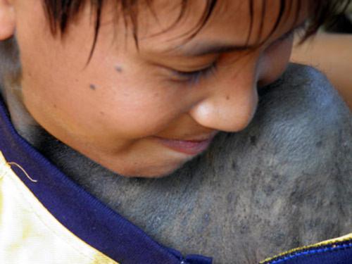 Cậu bé ở Quảng Bình lông mọc tua tủa đầy người