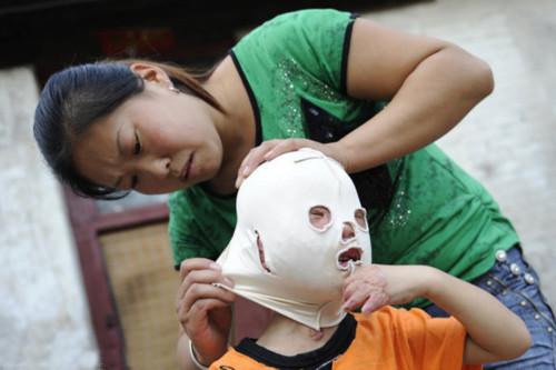 Cuộc sống kỳ lạ của cậu bé mang mặt nạ