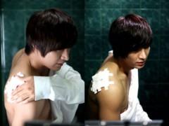 Lee Min Ho lộ vết thương tai nạn