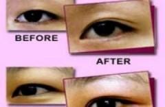 Những tai nạn khi cắt mí mắt làm đẹp