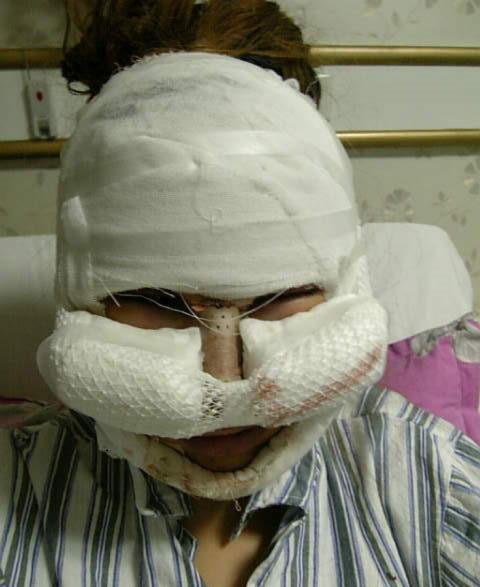 Khuôn mặt băng bó chằng chịt sau phẫu thuật. Ảnh: Chinabuzz.