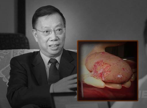 Dưới làn sóng lên án cự đại của cộng đồng quốc tế, Hoàng Khiết Phu, cựu phó bộ trưởng Bộ y tế Trung Quốc đã nhiều lần ra mặt biện hộ.Ảnh internet