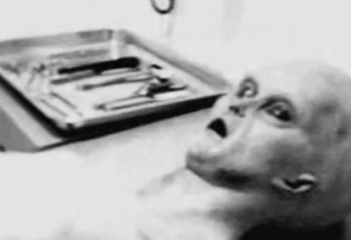 Hình ảnh cắt từ một đoạn video, được cho là ghi lại sau khi mổ tử thi người ngoài hành tinh. (Ảnh: YouTube/Dietrolafacciata)