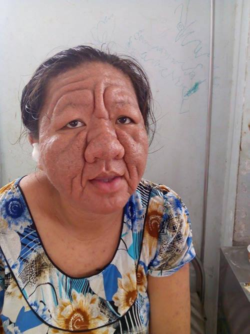 Chị Tha Ra 29 tuổi nhưng có khuôn mặt biến dạng như bà lão 70 tuổi. Ảnh báo Kiến Thức