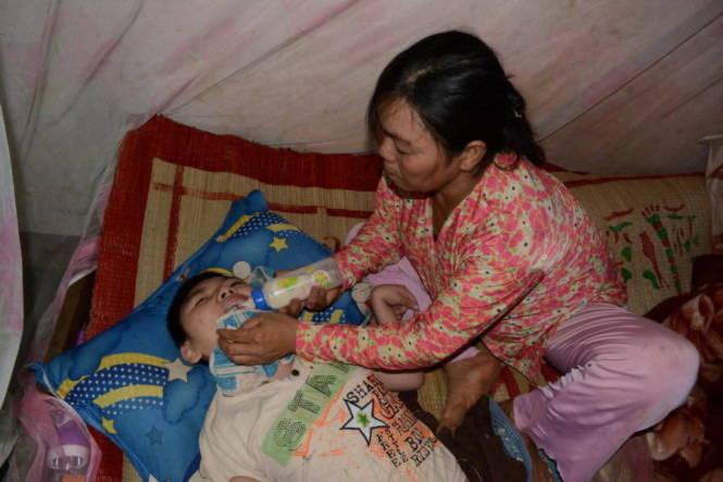 Chưa có tiền thay van não cho con nên mỗi lần cho con uống sữa, con trai bị bệnh bại não thường bị trào lên mũi và nôn ói hết ra ngoài - Ảnh: Hồng Lĩnh