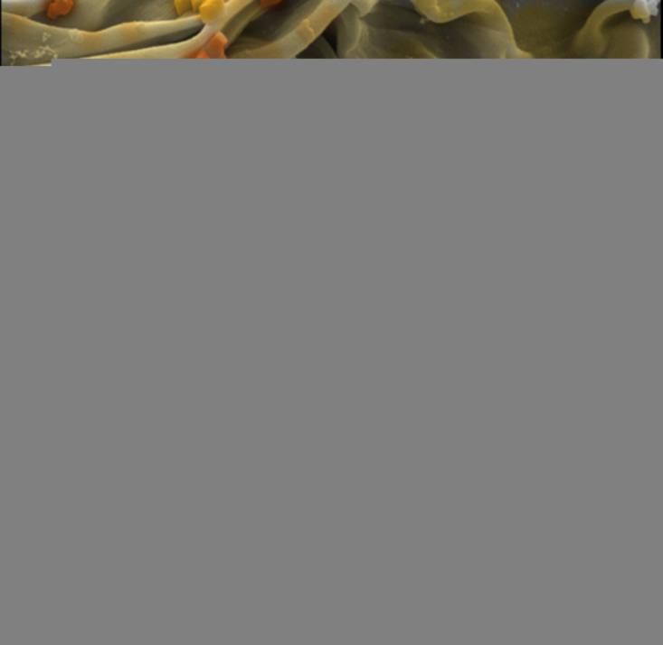 Dharmesh Patel gửi dự thi bức ảnh chụp kết cấu có thớ của những sợi gân bò.