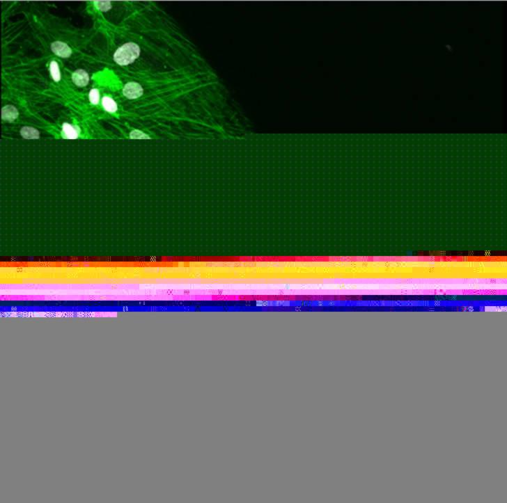 Ảnh của Elham Radvar chụp một lỗ cực nhỏ tạo thành hình mẫu trên một lớp mạng cho thấy một mạng lưới sợi nhỏ trông giống như miện núi lửa đang phun nham thạch. Ảnh được chụp bằng kính hiển vi điện tử và được tạo màu giả.