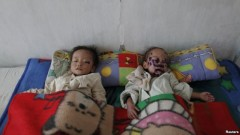 Trẻ em Bắc Triều Tiên bị suy dinh dưỡng trong bệnh viện ở Haeju (ảnh tư liệu).