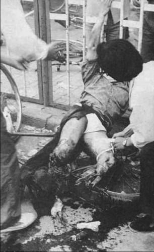 Sinh viên Phương Chính bị chiếc xe tăng chạy qua cán nát đôi chân (Ảnh: Internet).