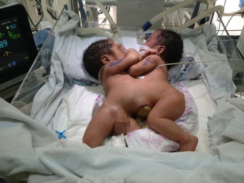 Bố của 2 bé sơ sinh dính liền: 'Tôi run bắn người khi thấy hai con bị dính ngực, bụng' - 1
