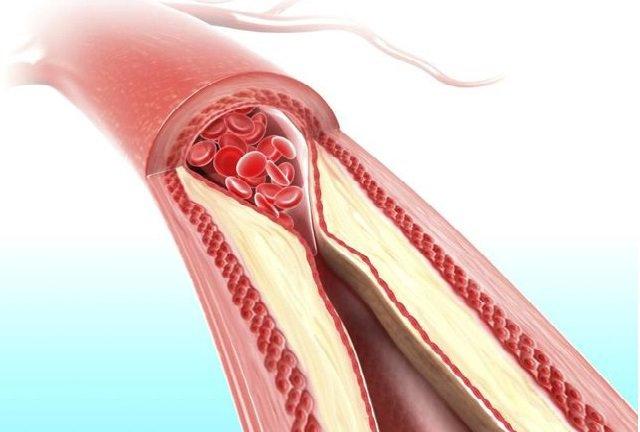 Động mạch bị chặn hoặc tắc nghẽn thường xảy ra khi có mảng bám tích tụ trên thành động mạch và làm giảm đáng kể lượng máu lưu thông trong cơ thể. (Ảnh: benhtimmach.info.vn)