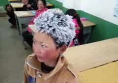"""""""Cậu bé tóc đóng băng"""" chỉ được trợ cấp 500 Nhân dân tệ, tức vào khoảng 77 đô la Mỹ ( Ảnh từ Weibo)"""